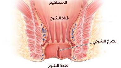 Photo of علاج شرخ المستقيم بالأعشاب