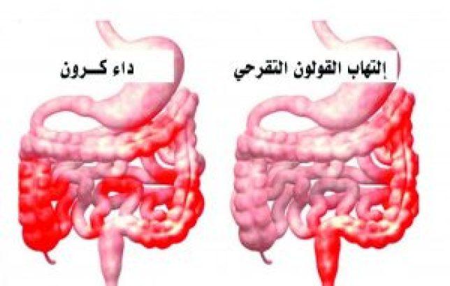 علاج مرض كرون بالاعشاب