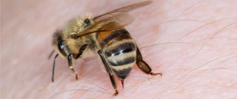 فوائد لسعة النحل للمفاصل