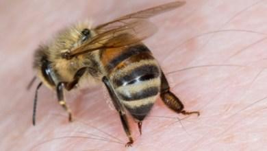 Photo of فوائد لسعة النحل لعلاج المفاصل