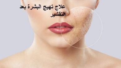 Photo of تخلصي من تهيج البشرة بعد التقشير بخطوات بسيطة