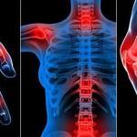 اسباب الروماتيزم و علاجه