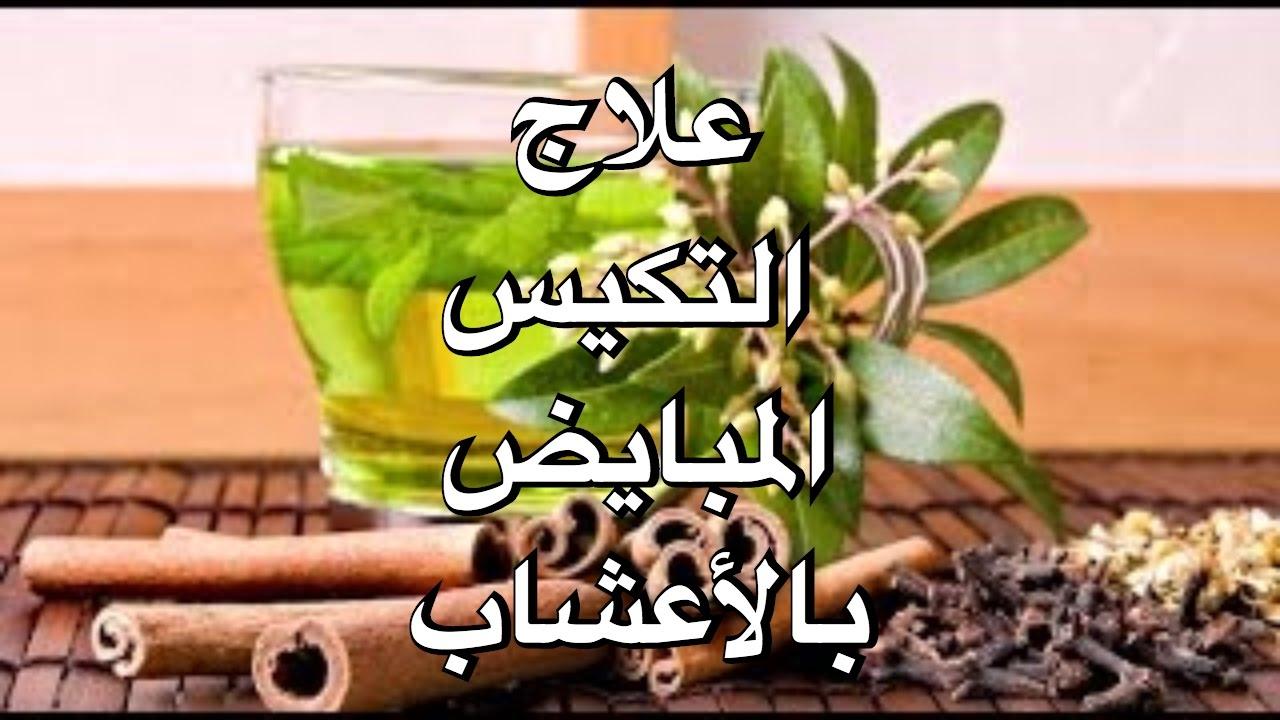 علاج تكيس المبايض بالاعشاب الطبيعية