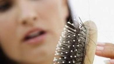 Photo of علاج تساقط الشعر الشديد للرجال والنساء مع أفضل الوصفات الطبيعية 100%
