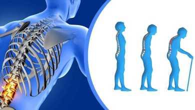 Photo of مضاعفات هشاشة العظام وطرق العلاج