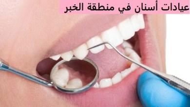 Photo of بالتفاصيل أفضل عيادات طبية للأسنان في منطقة الخبر