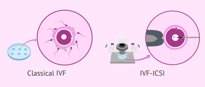 أفضل مراكز الحقن المجهري في الرياض