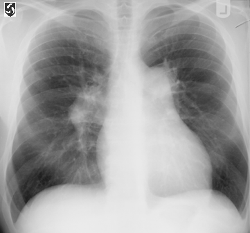 Image result for cor pulmonale cxr