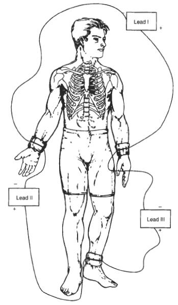 DIY Heart Monitoring Device (Simple ECG)