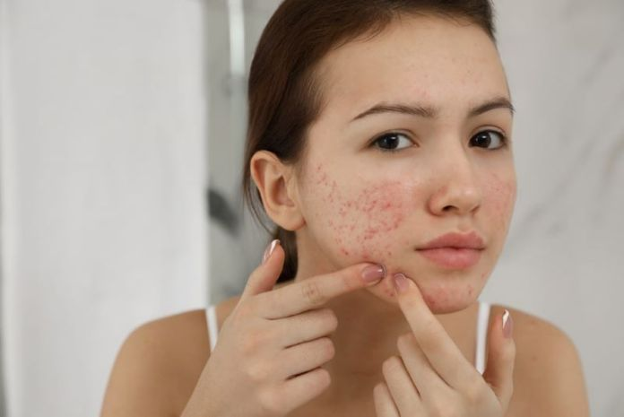 How to get rid of Pimples in 5 Minutes - Causes of Pimples