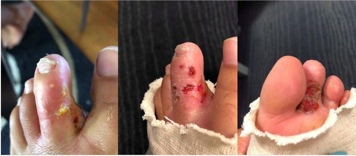 Horouta Waka Hoe club paddlers shared photos of infected toes, which they believed could be attributed to the unhealthy state of the awa.