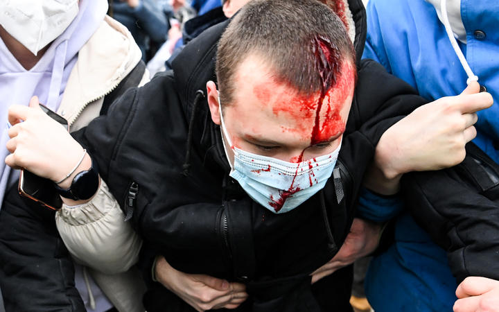 An injured man is helped by other protesters during a rally in support of jailed opposition leader Alexei Navalny in downtown Moscow on January 23, 2021. -