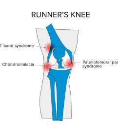there are a few different types of runner s knee that could be troubling you the easiest way to identify your condition is by isolating the area of your  [ 1333 x 1261 Pixel ]
