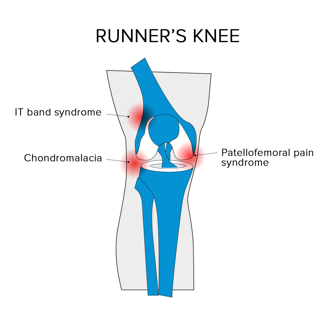 hight resolution of patellofemoral pain syndrome pfps with pfps pain occurs in the fat pad beneath the patella the synovial tissue lining the knee joint and surrounding