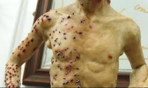 La peste che dilaga (nel 1634 da Rovigo e il coronavirusa oggi 26 Febbraio 2020)