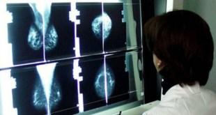 All'IRCCS CROB di Rionero in Vulture, incontro scientifico sulle terapie di palliazione in oncologia