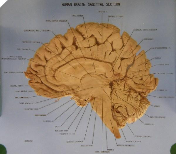 20 Infundibulum Brain Midsagittal Pictures And Ideas On Meta Networks