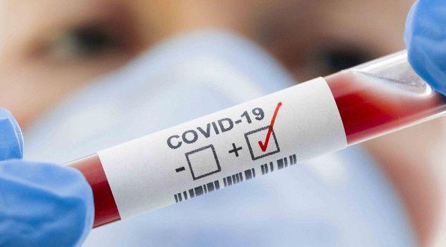 Coronavirus: La curva sigue subiendo y confirmaron casi 50 casos nuevos en Roca