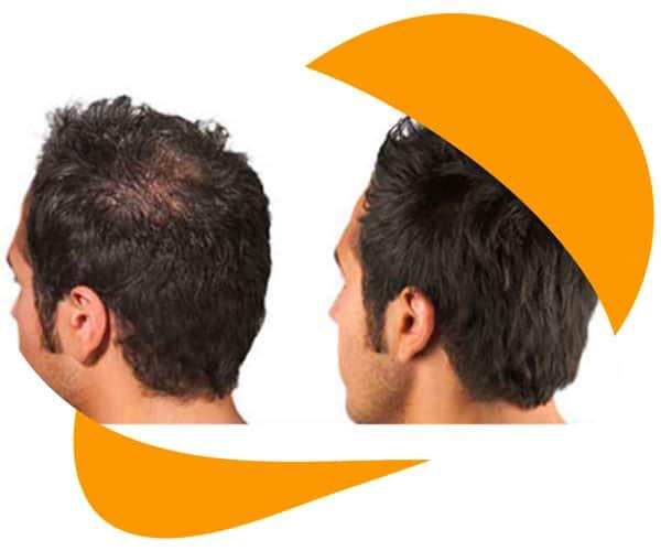 alopecia experts - alopecia