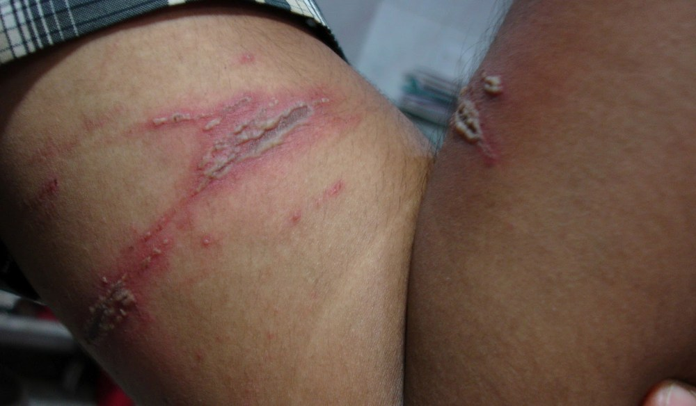 "Infected Paederus dermatitis ""kissing lesion"" that occurred where a Rove beetle was crushed"