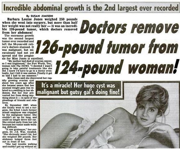 tumor_removed_2