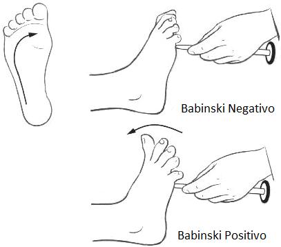 Segno di Babinski