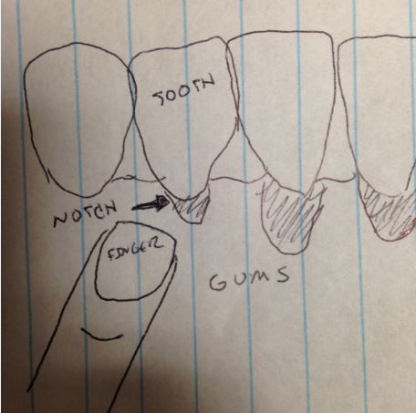 Should I Be Concerned About a Notch in Tooth at Gum Line?