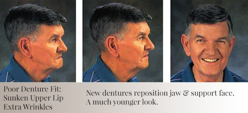 Denture supports mans face to look younger