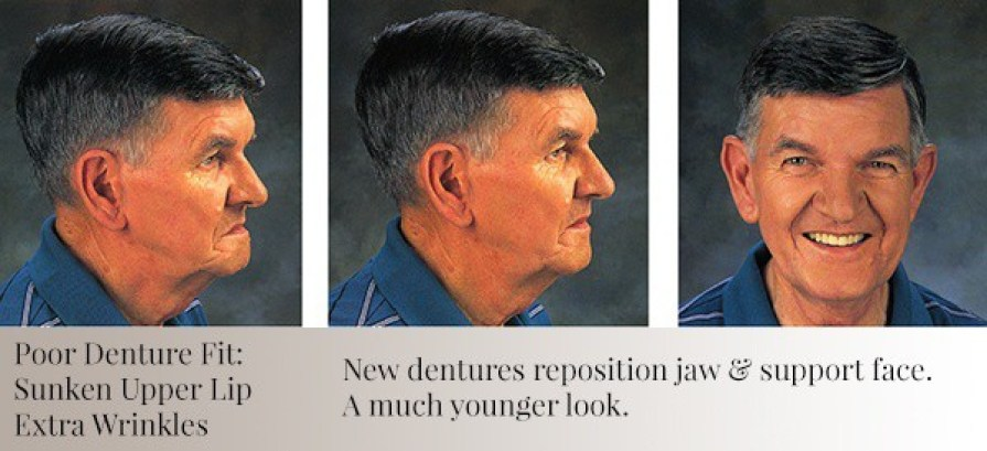Different views of a mans face showing the benefit of dentures.