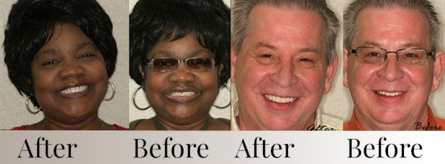 Smiling faces showing before and after denture treatment results