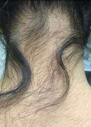 of neck hair removal patient