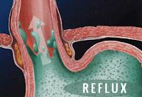Photo of Összetett jó tanács természetgyógyásztól a Refluxhoz