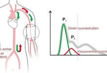 Photo of Amit tudnod kell a vérnyomás méréssel és a vérnyomással kapcsolatban ,nem árt ,ha tudod