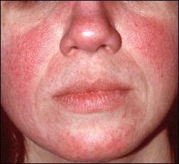 Image Result For Tea Tree Oil For Dry Skin On Face