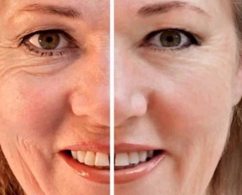 Mejores tratamientos antiarrugas   Rosa Lombardero