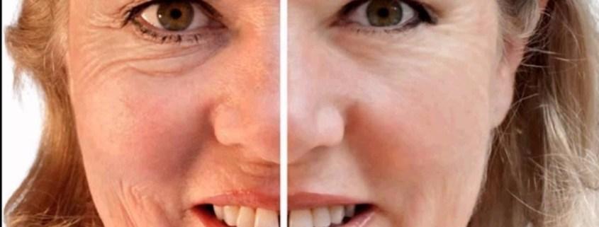 Mejores tratamientos antiarrugas | Rosa Lombardero