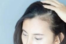 alopécie perte cheveux