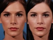 Nose Job result on woman