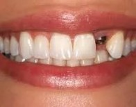damage tooth