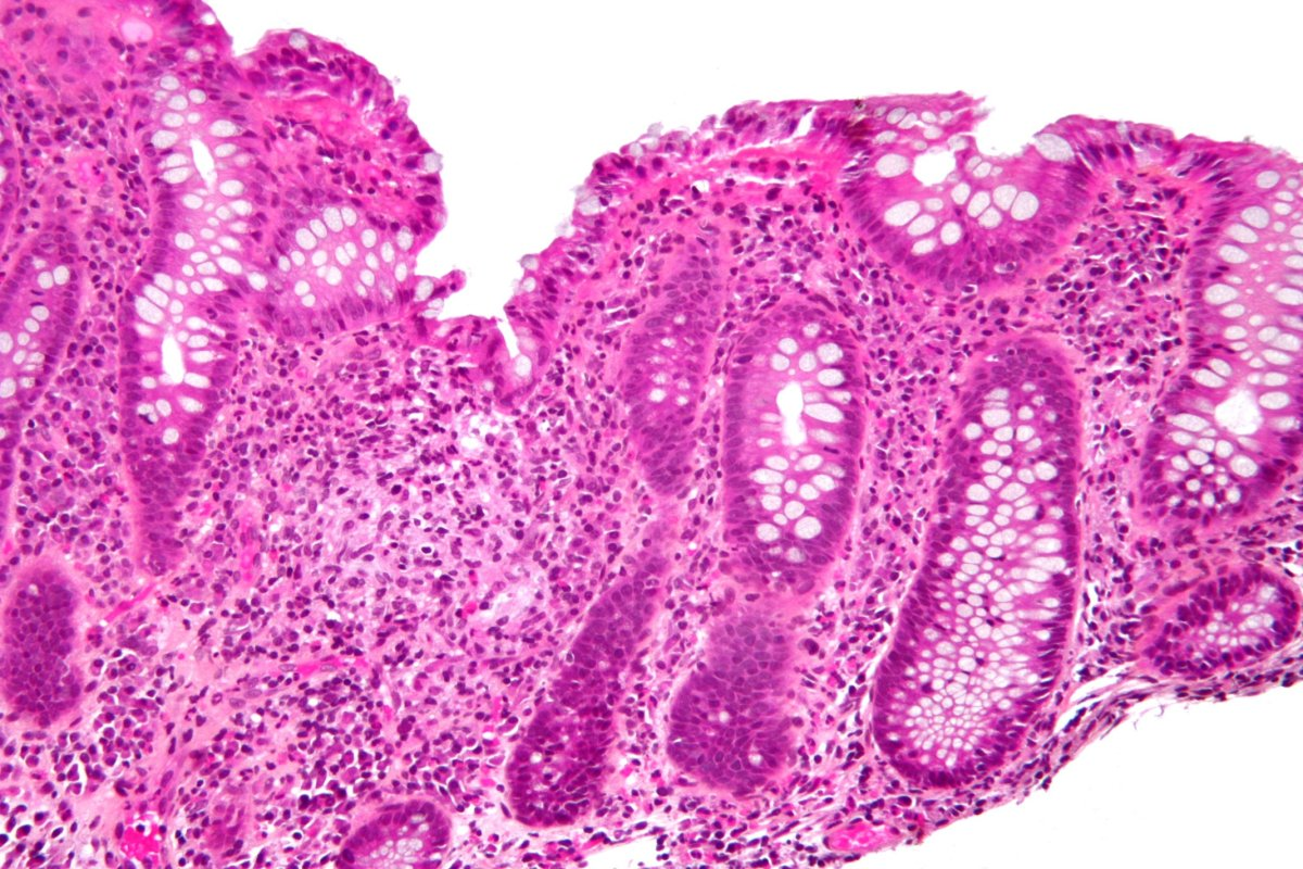 colitis: a type of IBD