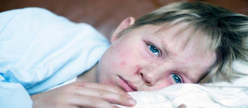 Η ιλαρά «σβήνει τη μνήμη» του ανοσοποιητικού μας συστήματος!
