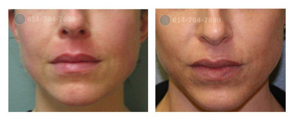 Juvederm in Columbus OH - ROXY Plastic Surgery