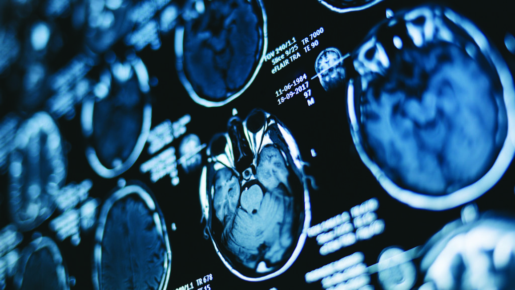 It is quite common for late stage lung cancer to spread to the brain