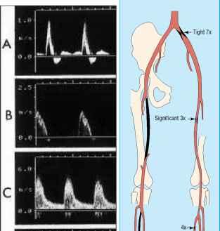 Noninvasive methods of arterial and venous assessment ...