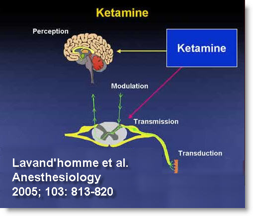 https://i0.wp.com/www.rsdfoundation.org/en/images/ketamine_4_edit.jpg