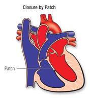 Die opening word met 'n 'patch' toegelap. In sommige gevalle kan dit sonder 'n opehartoperasie gedoen word, maar meestal tydens 'n opehartoperasie.