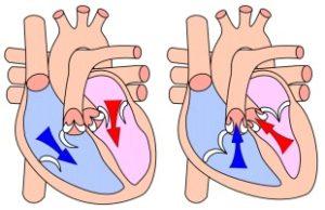 Hierdie skets toon (andersom as die skets hierbo) eerste hoe die ventrikels gevul word en watter kleppe dan oop en toe is (links, diastolie) en dan watter kleppe oop en toe moet wees met sametrekking (regs).