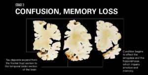 Stadium 3: Verward, geheueverlies. Die Tau-liggaampies verspreik van die frontale lobbe na die temporale lobbe en tas die hippokampus en amygdala aan wat geheue en emosies beheer.