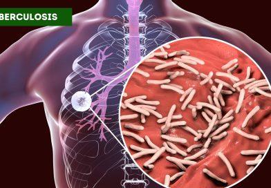 Waspada Gejala TBC, Ketahui Cara Pencegahannya
