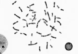Chromosome classification with Deep Learning and CNN